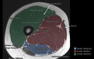 coxa proximal radiologia onilne - Compartimentos Musculares do Membro Inferior