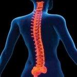 coluna 1 - Radiologia Online