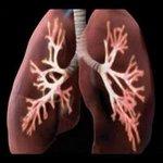 torax 1 - Radiologia Online