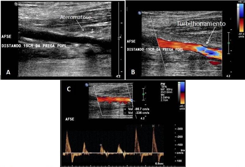 estenose arteria femoral esquerda e1563481121835 - Manual de Doppler